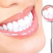 Легкий способ отбеливания зубов