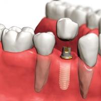 Зубные импланты. О чем важно помнить