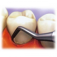 Чистка зубов от зубного камня у стоматолога