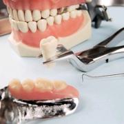 О зубном имплантационном протезировании