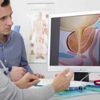 Лечение аденомы простаты в Германии